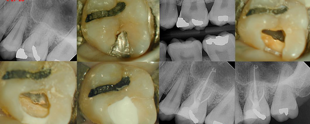 Caries Leveraged Access–Max 1st Molar