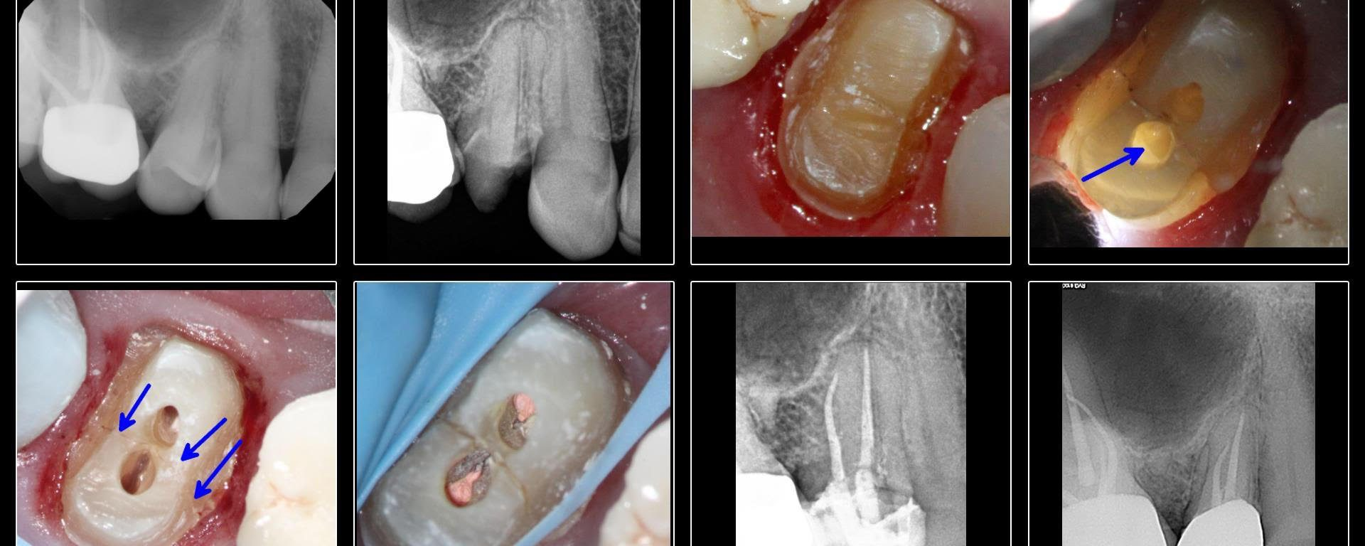 Fractured Bicuspid/MIE