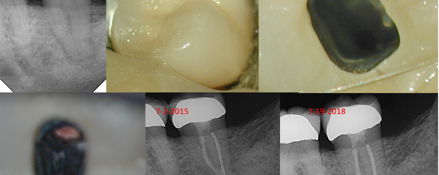 3.5 Year Recall on C-shaped Man. 2nd Molar