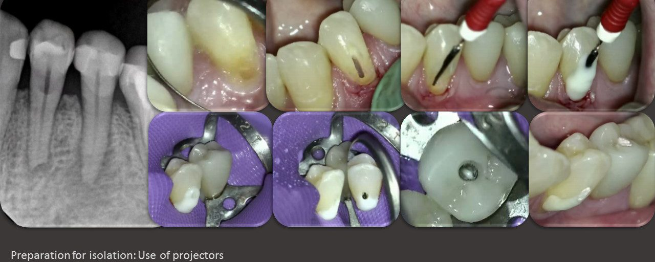 Preparation for isolation : caries driven access