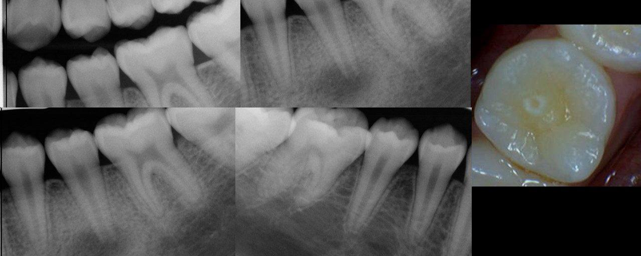 Regenerative Endodontics – 8 year recall