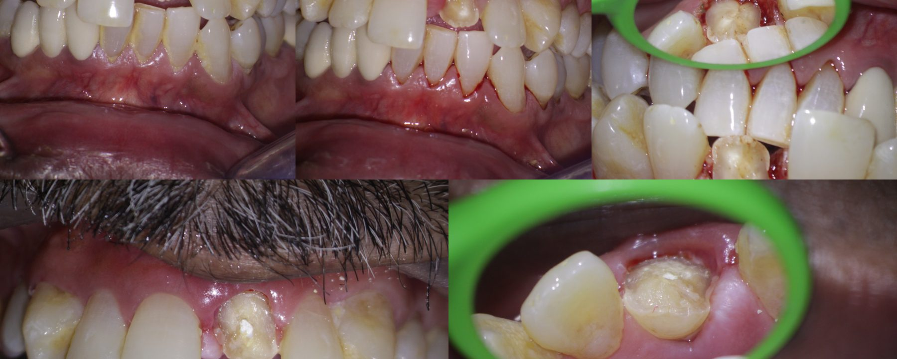 Crown fracture extending sub-gingival