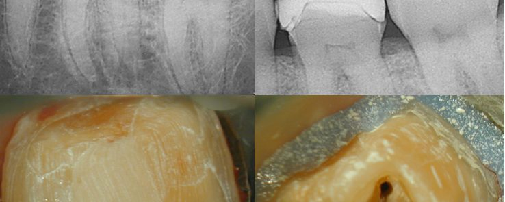 Lower Molar w/IP prior to getting a crown