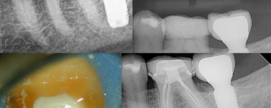 Lower Molar Treatment-IP prior to getting crown