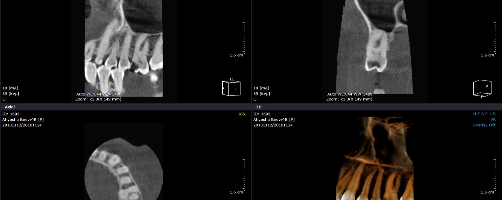 RCT- Maxillary Molar with Carabelli cusp