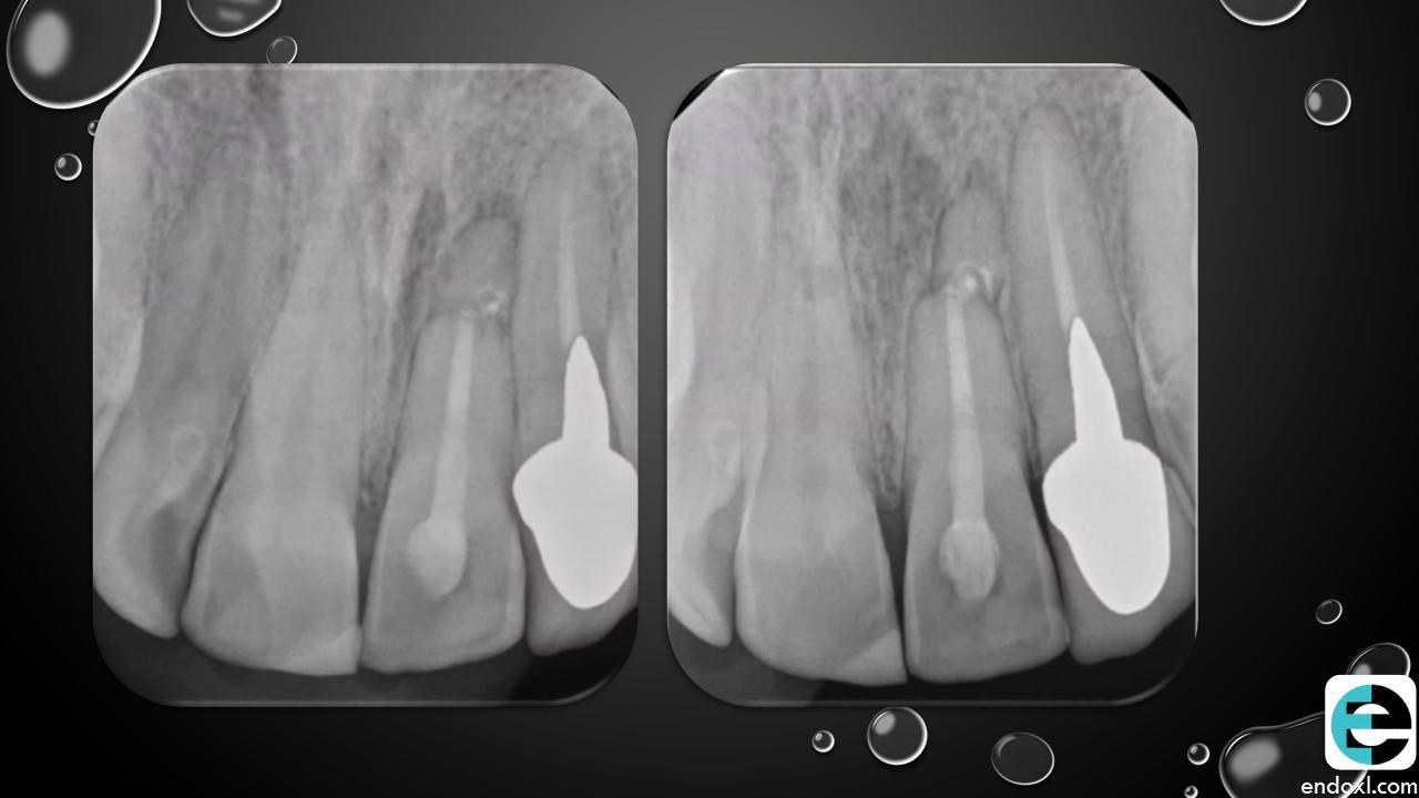 horizontal fracture 5