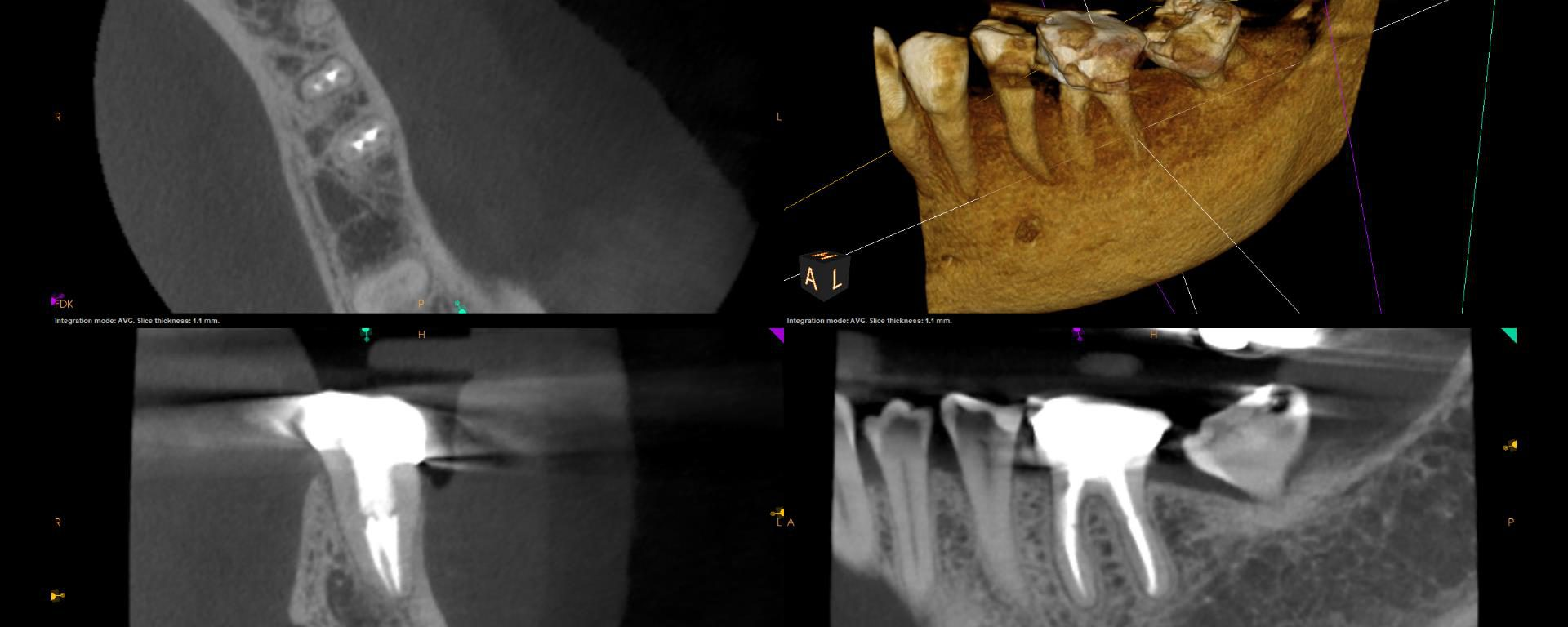 "fracture case"" CBCT of ""good root"""