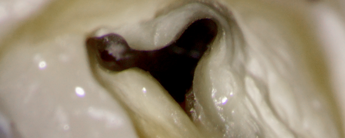 MAXILLARY 2nd MOLAR WITH A WEIRD ANATOMY of the buccal canal system